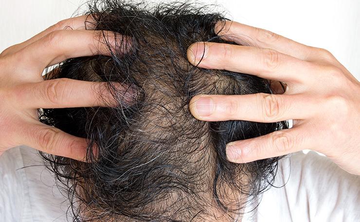 男性型脱毛症AGA